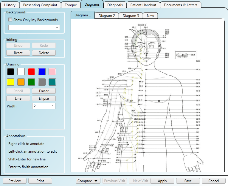 Using acupuncture diagrams in the patient notes area of the software